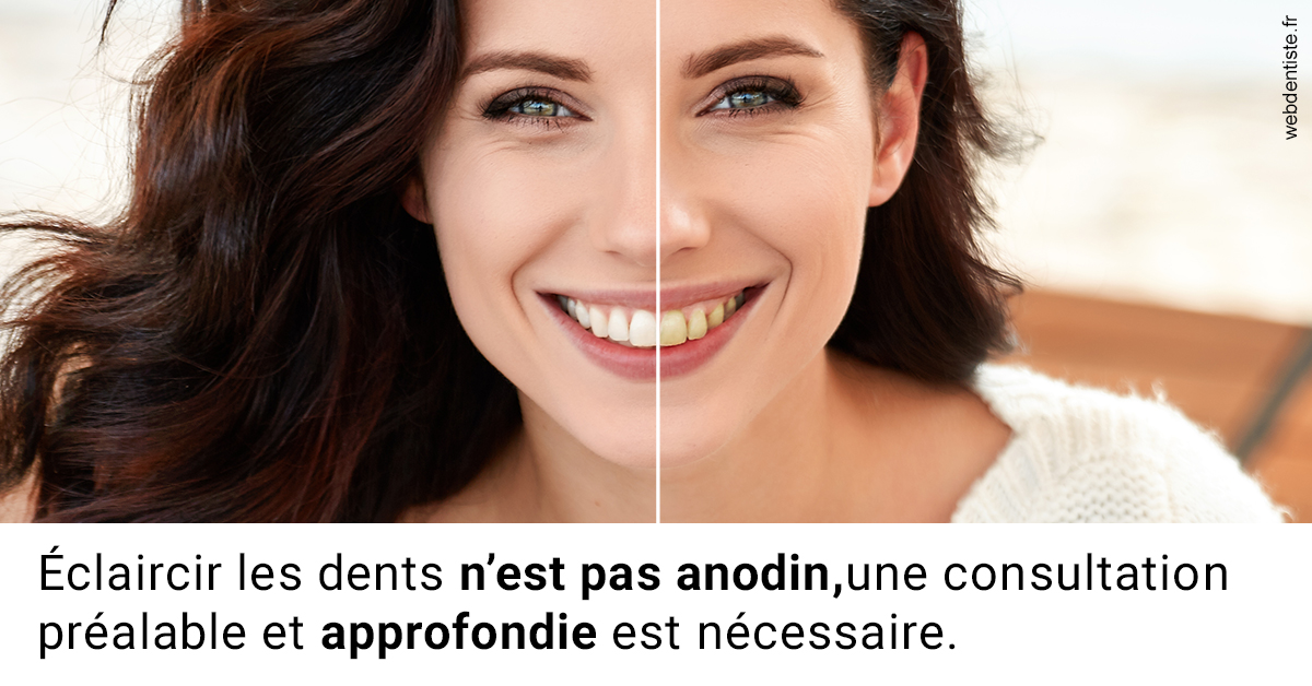 https://selarl-cabdentaire-idrissi.chirurgiens-dentistes.fr/Le blanchiment 2